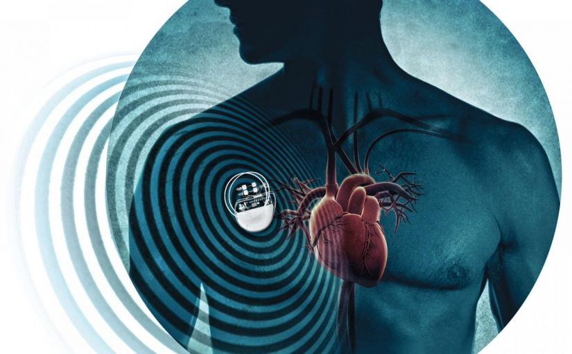 """If you want to keep living, Pay a ransom, or die."" Over 8,600 Vulnerabilities Found in Pacemakers"